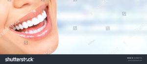 stock-photo-laughing-woman-mouth-with-great-teeth-over-blue-background-329065745