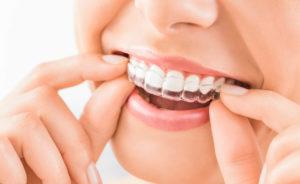 bardoneschi-dentisti-genova-3
